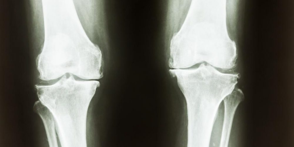 A soy-based diet could help strengthen bones