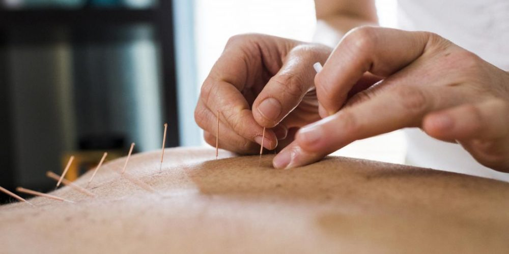 Acupuncture may reduce menopause symptoms