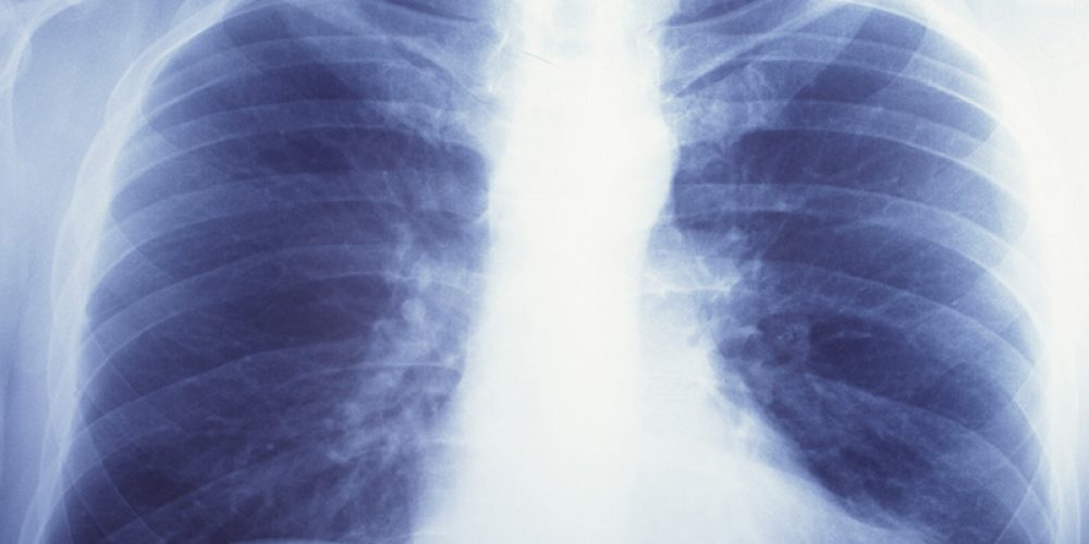 'Double-Edged Sword': Lung Cancer Radiation Rx May Raise Heart Attack Risk