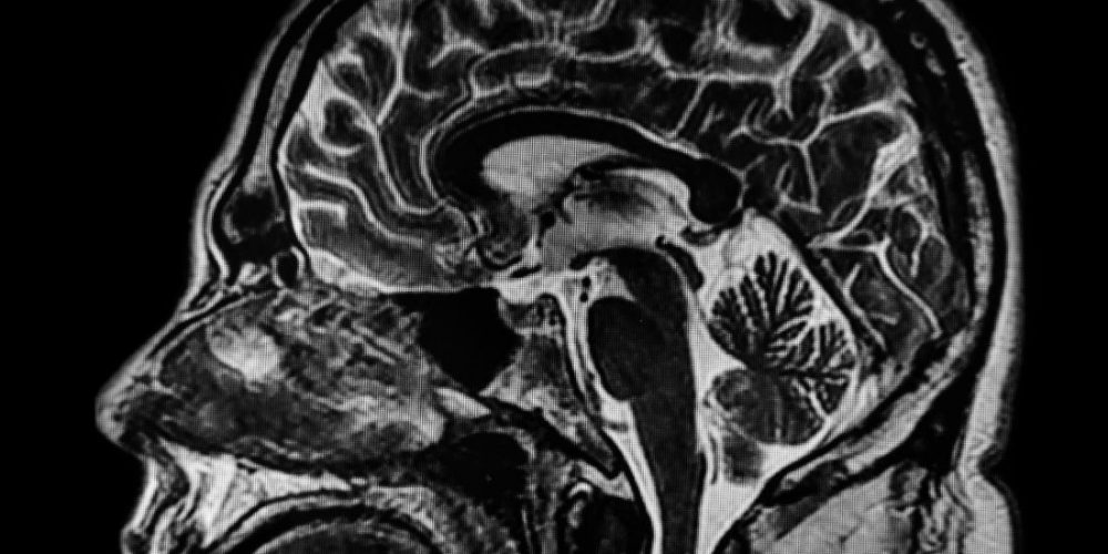 Exploring the neuroanatomy of a murderer