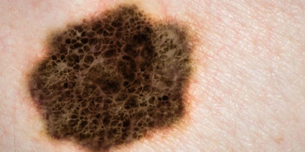 Head, Neck Melanomas Show Alarming Rise in Young Americans