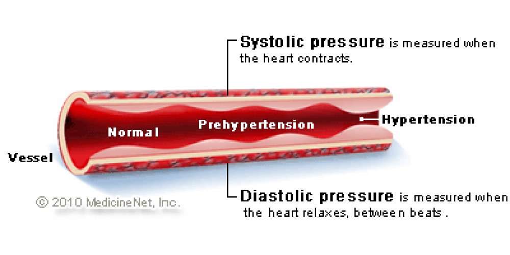 High Blood Pressure Treatment (Natural Home Remedies, Diet, Medications)