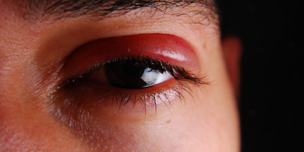 How can shingles affect the eyes?
