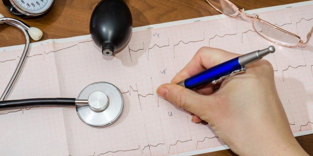 How does a doctor diagnose atrial fibrillation?