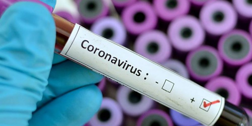 Is the Super Bowl Safe With Coronavirus in the U.S.?