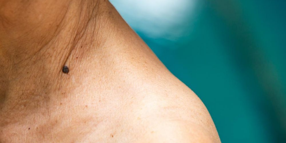 Melanoma: Keeping these molecules apart could stop cancer spread