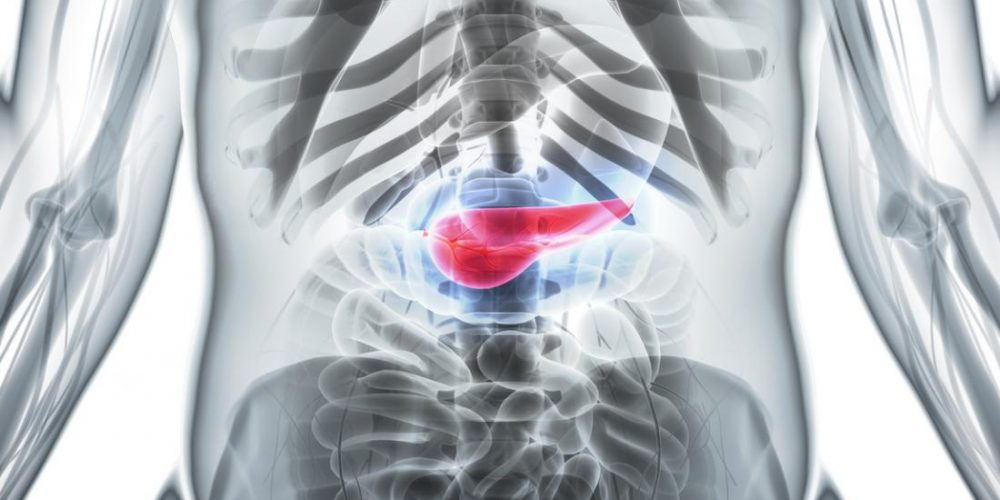 Pancreatic cancer could be treated with a Parkinson's drug