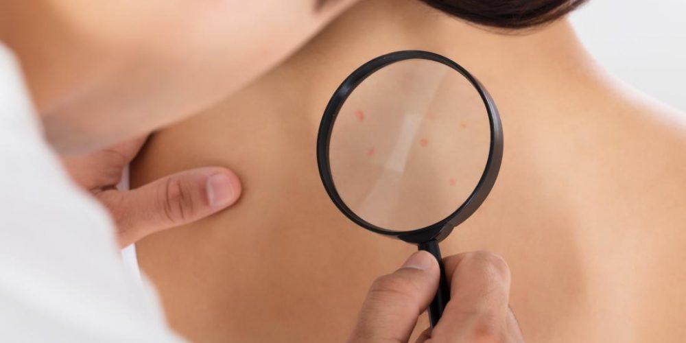 Skin cancer: Common IBD, arthritis drug may raise risk
