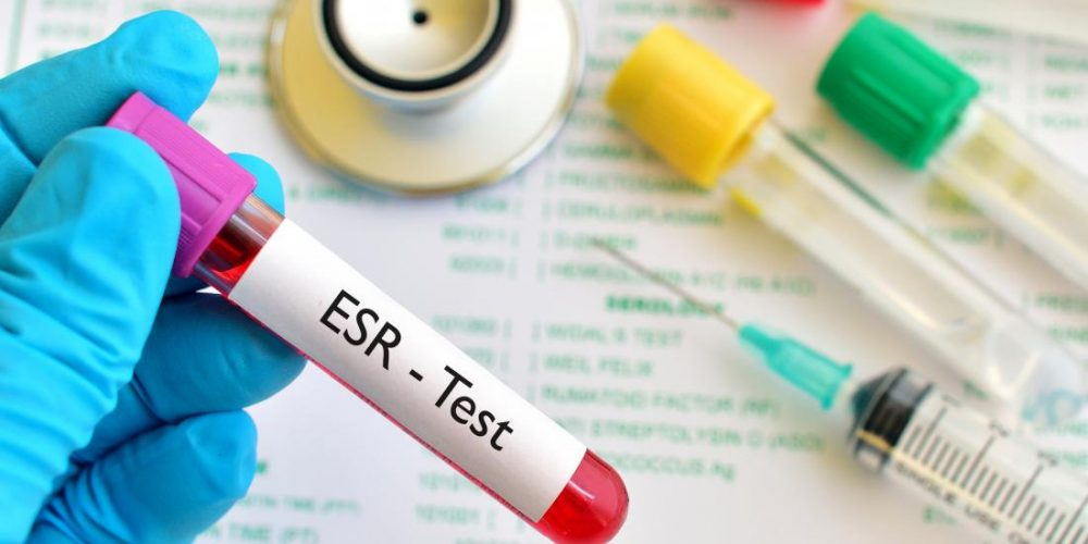 What does it mean if your ESR is high?