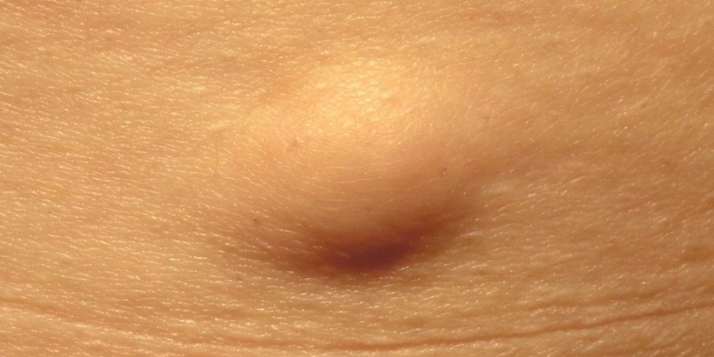 What is a lipoma?