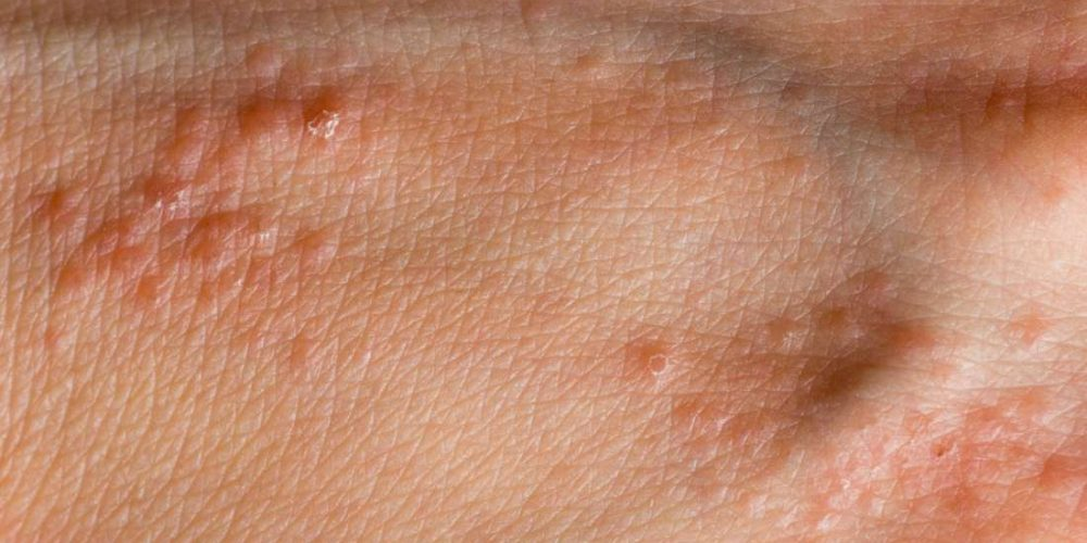 What to know about hand pimples