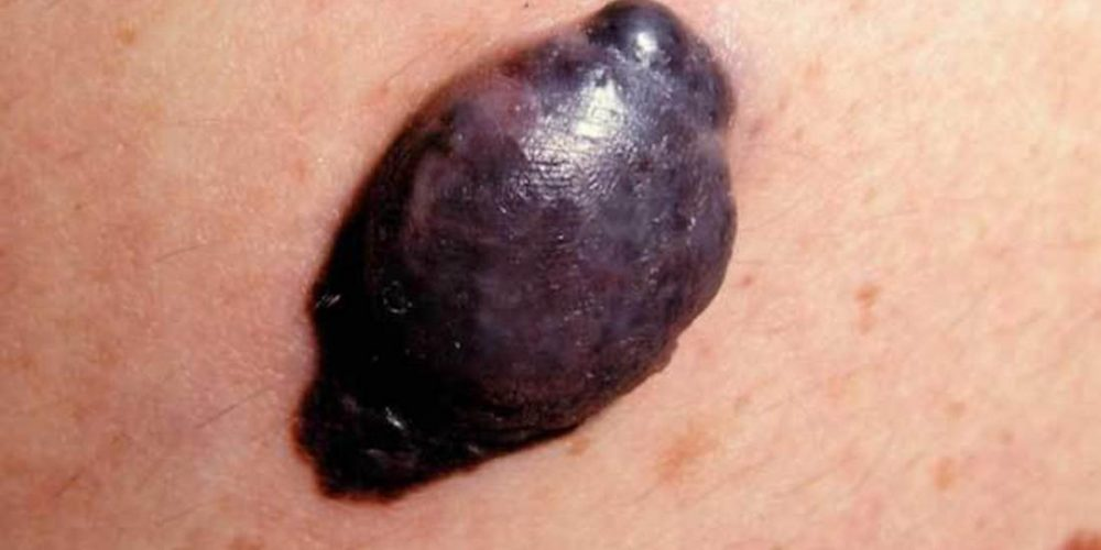 What to know about nodular melanoma