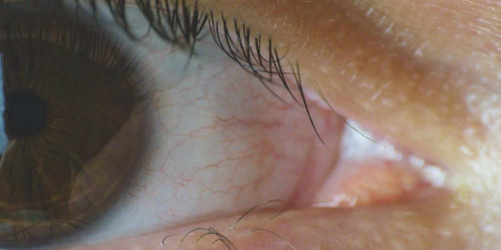 What to know about punctal plugs for dry eye