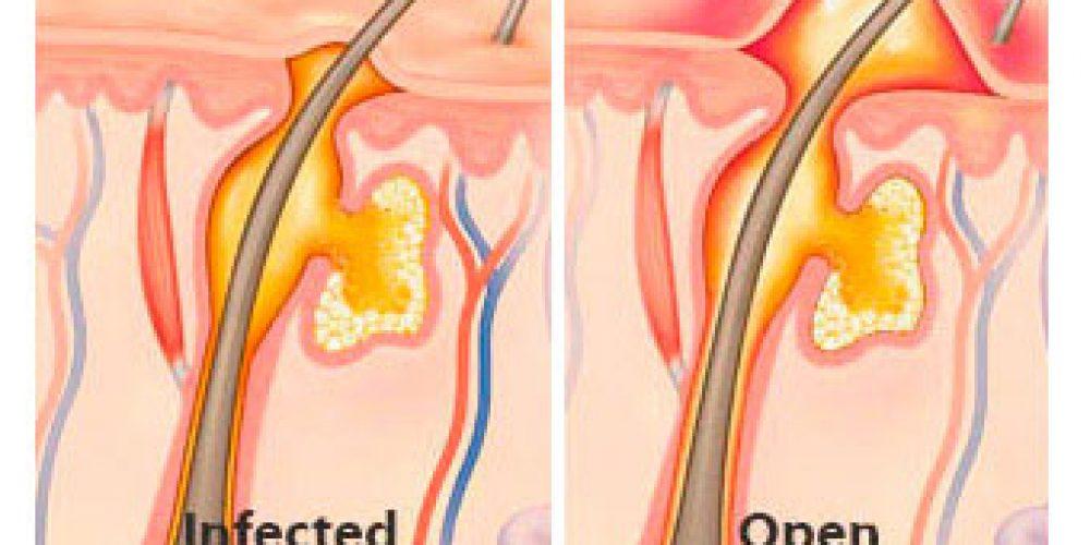 Boils (Skin Abscesses)