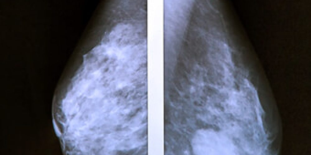 Breast Cancer Questions to Ask the Doctor