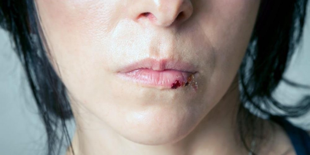 Causes and treatment of a split lip