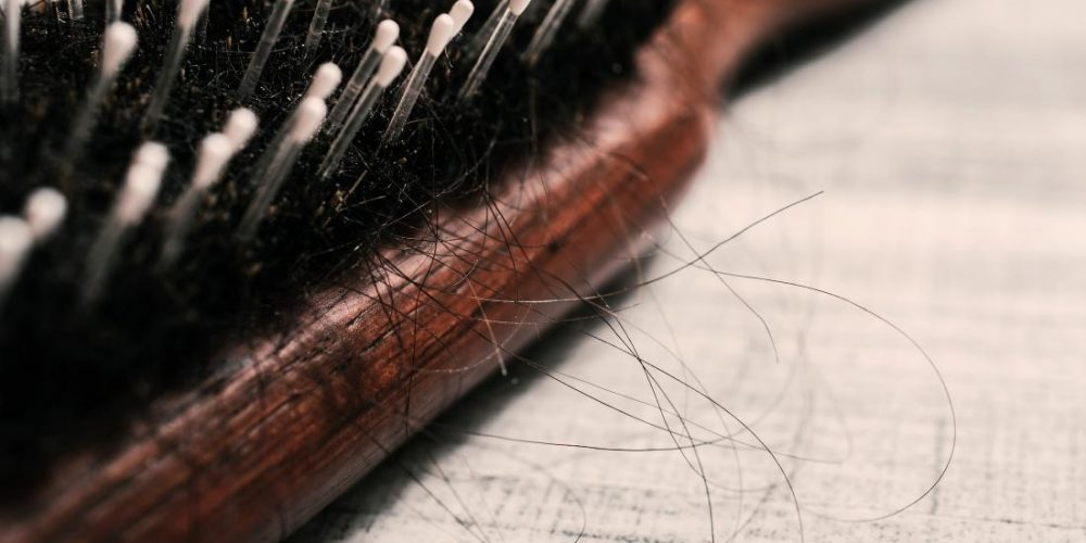 Causes and treatments for hair loss