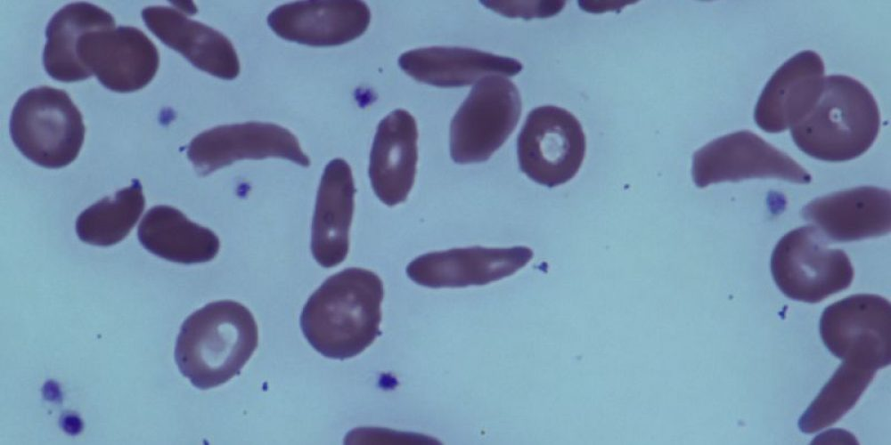 Experimental Drug Shows Early Promise Against Sickle Cell Disease