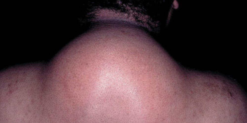 Lipodystrophy (Acquired, Generalized, Inherited)