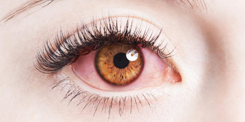 Persistent stress may lead to vision loss, study shows