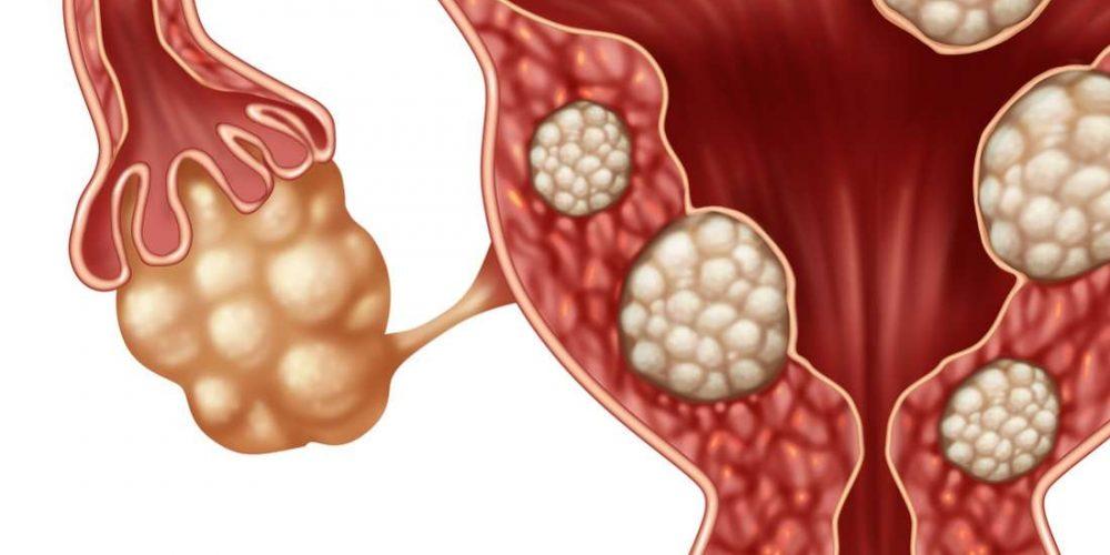 Todo lo que necesita saber acerca de los fibromas