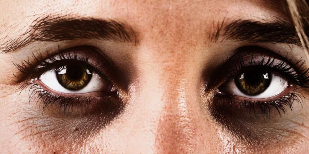 What causes dark circles under the eyes?