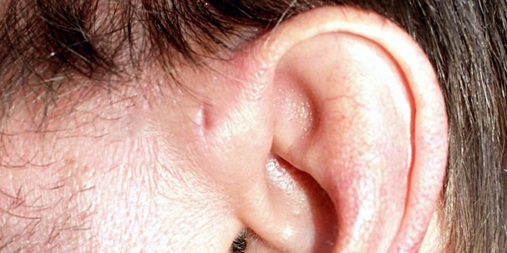What is a preauricular pit?