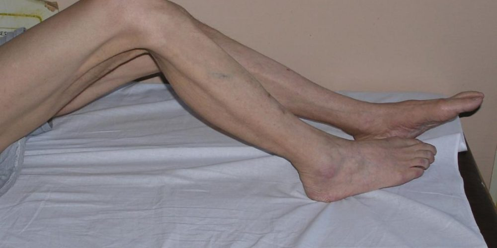 What to know about muscle atrophy