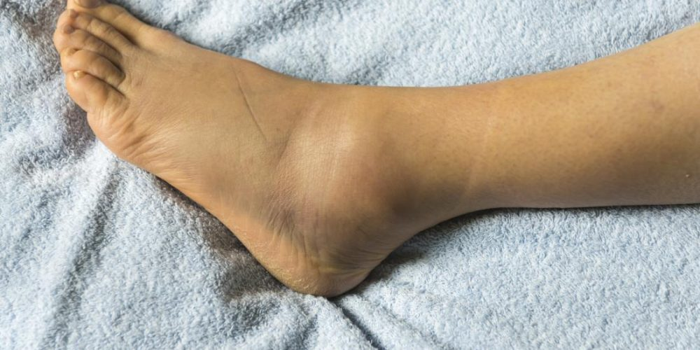 Why are my feet swollen?