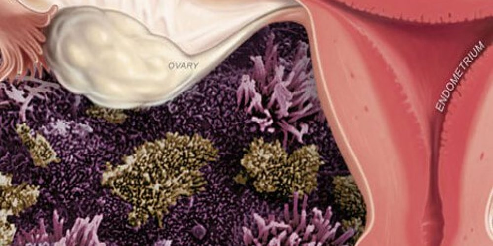 Endometriosis (Symptoms, Causes, Treatments, and Prognosis)