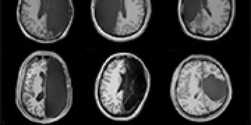 They Had Half Their Brains Removed. Here's What Happened After
