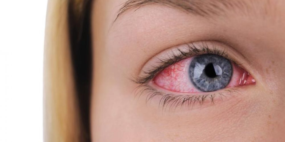 What is dry eye and how can I get rid of it?