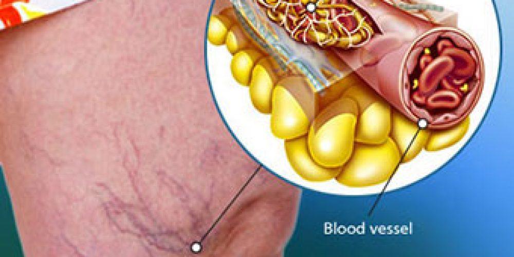 Blood Clots (in Leg)