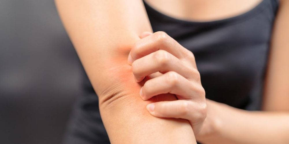 Can menopause cause itching? Tips for relief