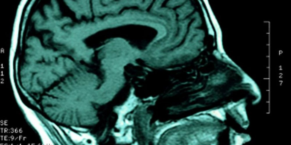 Clues to Why Epileptic Seizures Can Halt Breathing