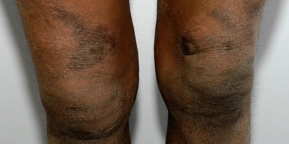 Eczema on black skin: What to know
