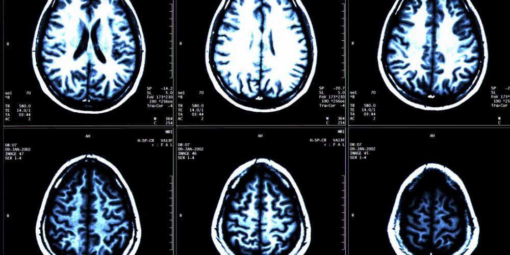 MS: New drug proven to slow brain shrinkage