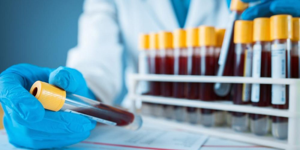 New blood test detects brain tumors with 87% accuracy