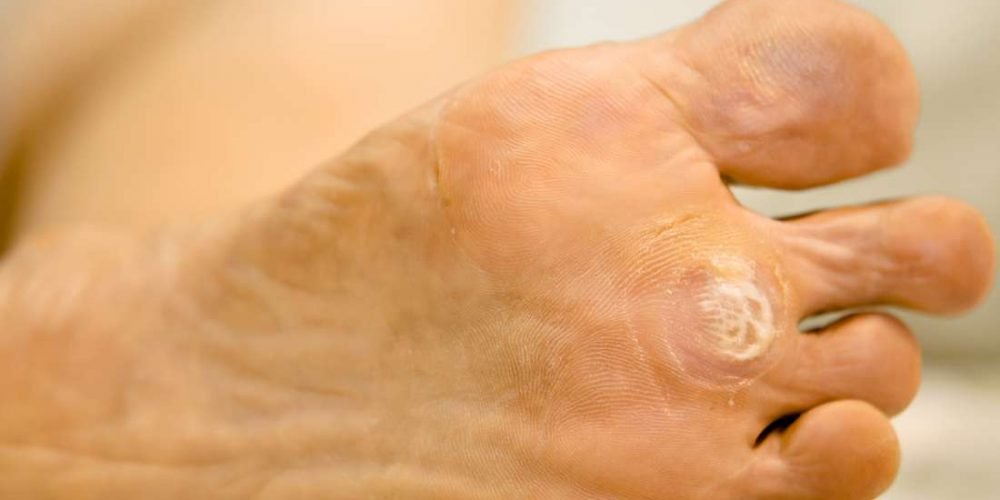 Plantar warts: Everything you need to know