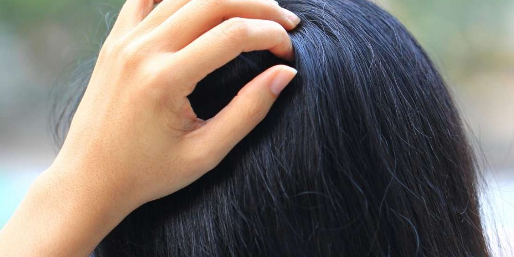What can cause a tingling sensation on the scalp?
