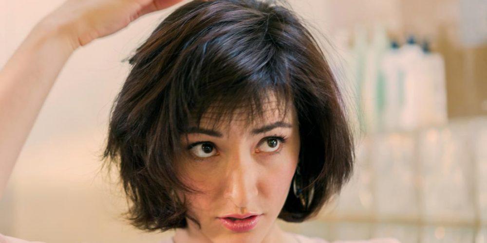 Can seborrheic dermatitis cause hair loss?