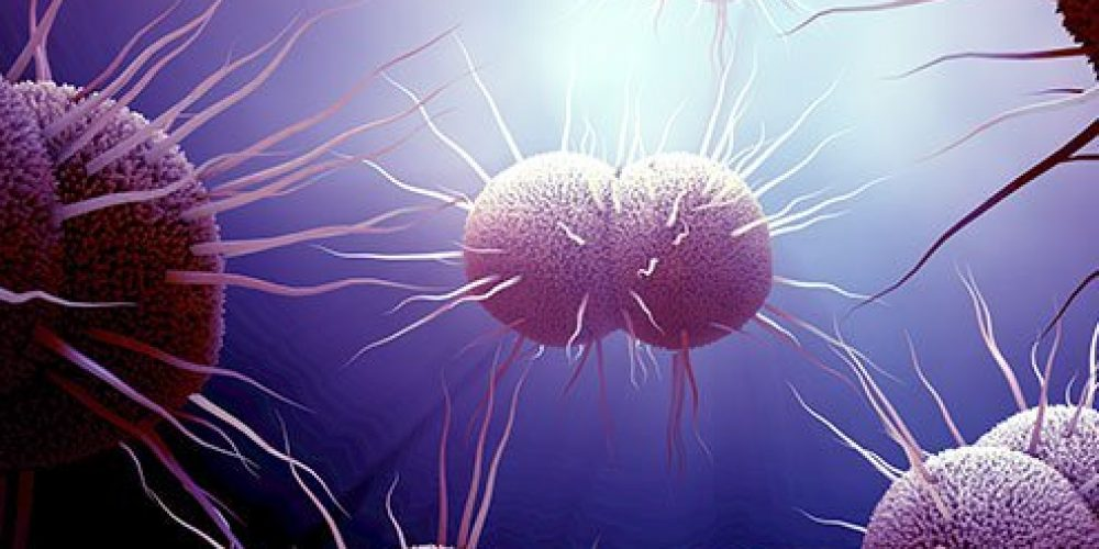 Gonorrhea In Women