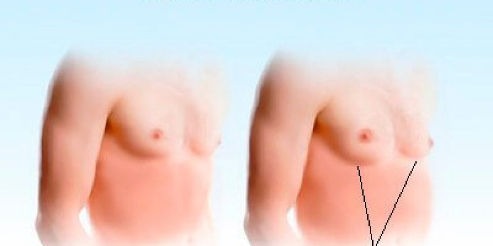 Gynecomastia (Enlarged Male Breasts Symptoms, Causes, and Treatments)