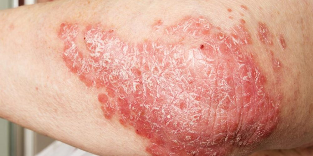 Symptoms and treatment of psoriatic arthritis rash