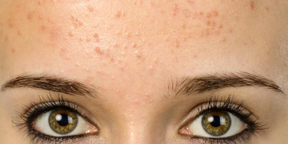 What causes forehead acne?