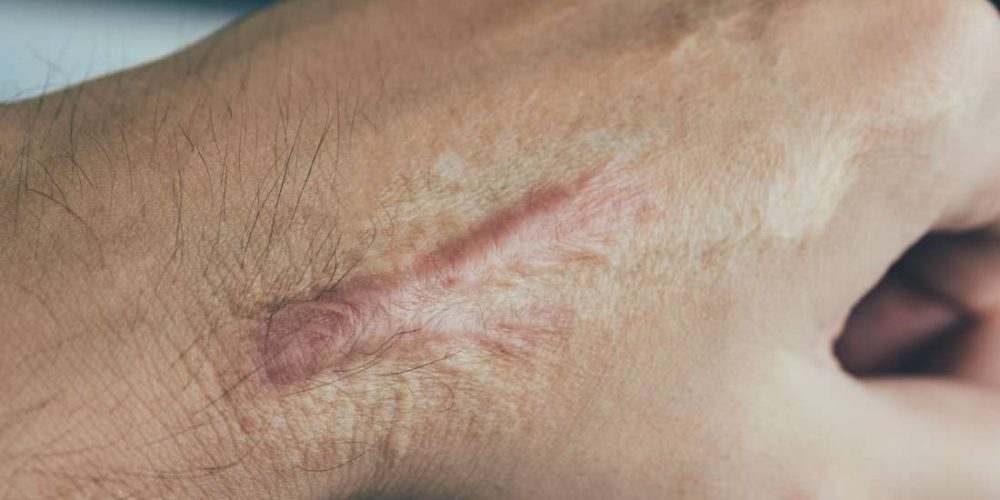 What to know about scar tissue