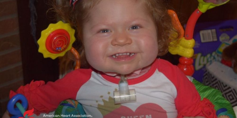 AHA News: Baby Born With 'One-of-a-Kind' Heart Receives Transplant