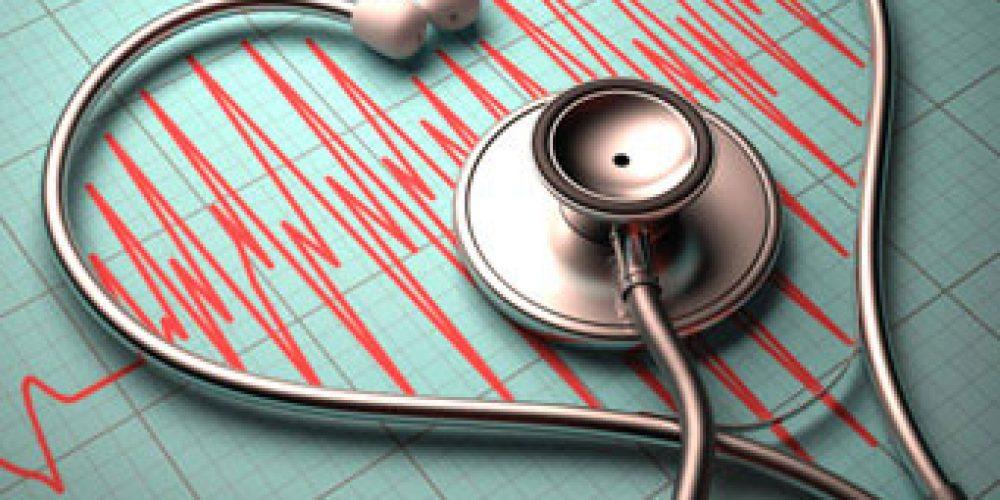 Atrial Fibrillation (AFib) Symptoms, ECG, and Treatment Medications