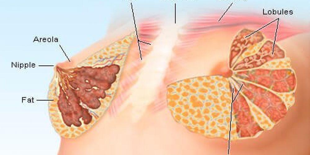 Breast Lumps (in Women)