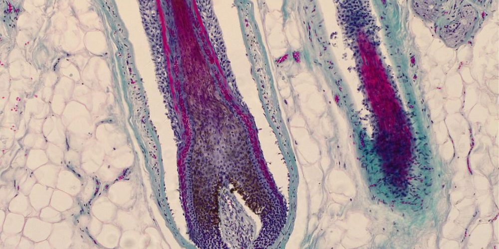 Hair follicles can be a site of origin for melanoma